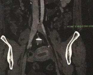 DPC : Les occlusions veineuses chroniques