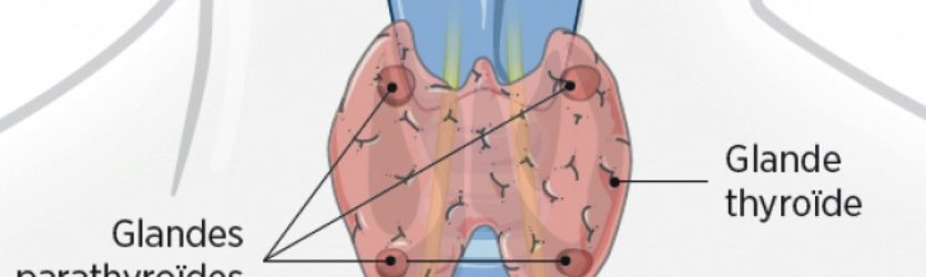 Pathologie cervicale extra vasculaire