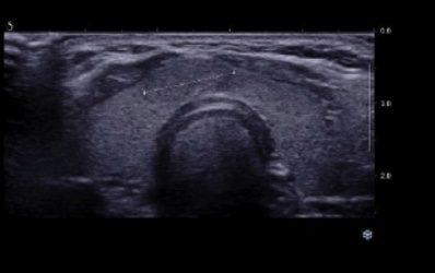 Nodules thyroïdes