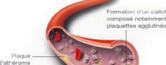 Actualités et gestion des anti-agrégants plaquettaires  –  DPC
