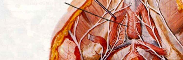 Projet du Club Médecine et Chirurgie Vasculaire Andrologique – CETI- Centre d'Exploration et Traitements de l'Impuissance