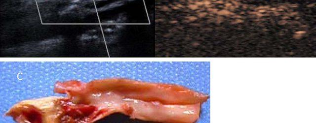 La plaque carotidienne – Réunion ARMVOP